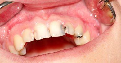 Pourquoi  la  santé de la Dent  est  négligée?